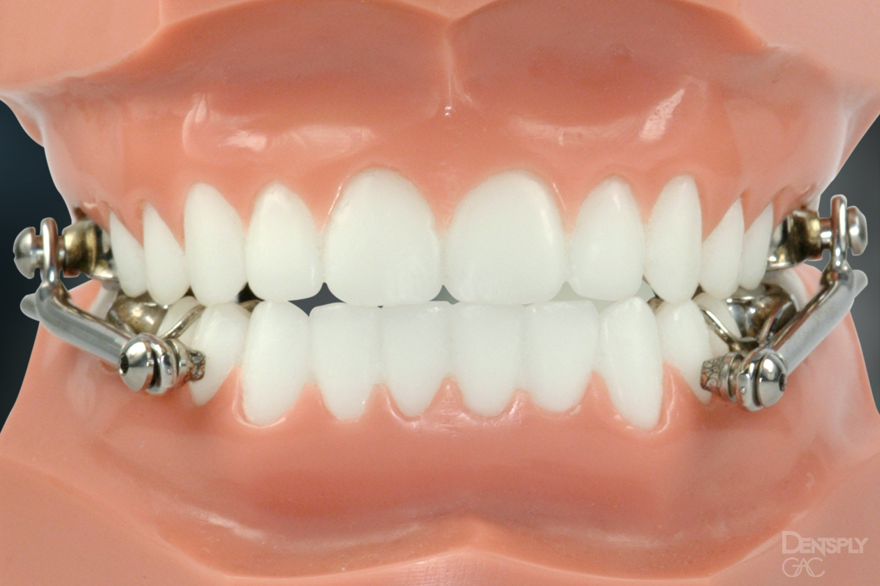 Ceramic braces on a young girl