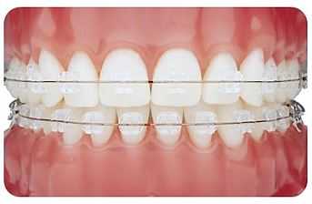 Clear fixed ceramic braces
